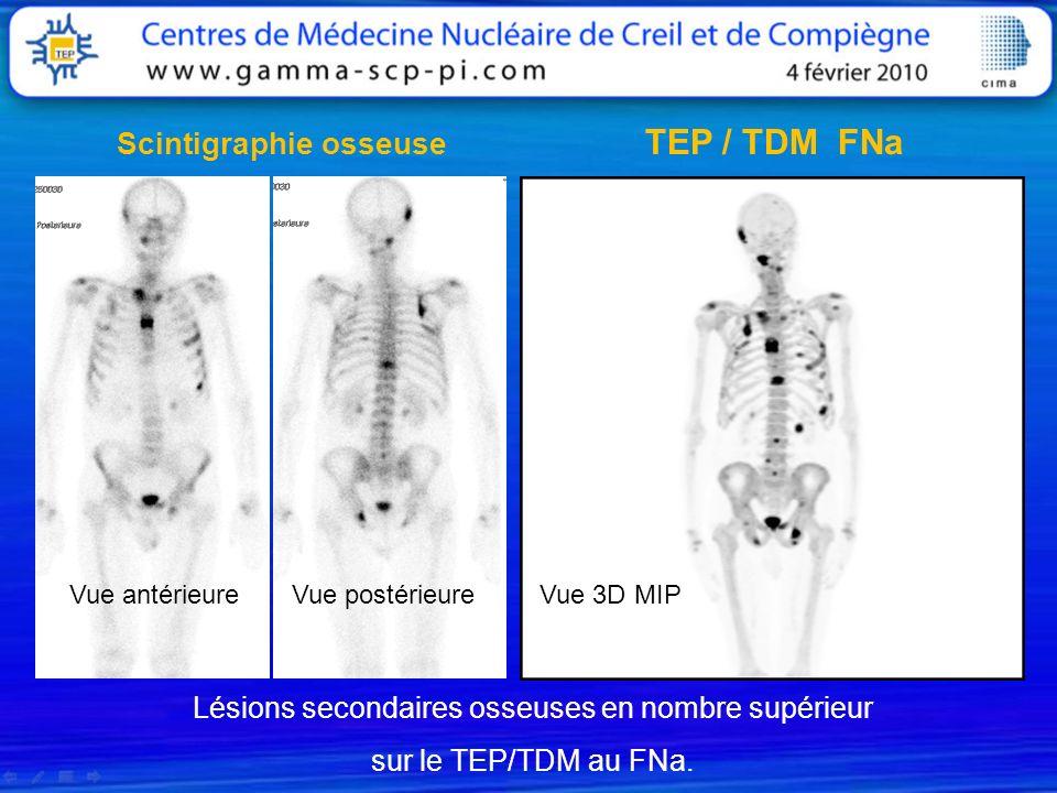 TEP / TDM FNa Scintigraphie osseuse