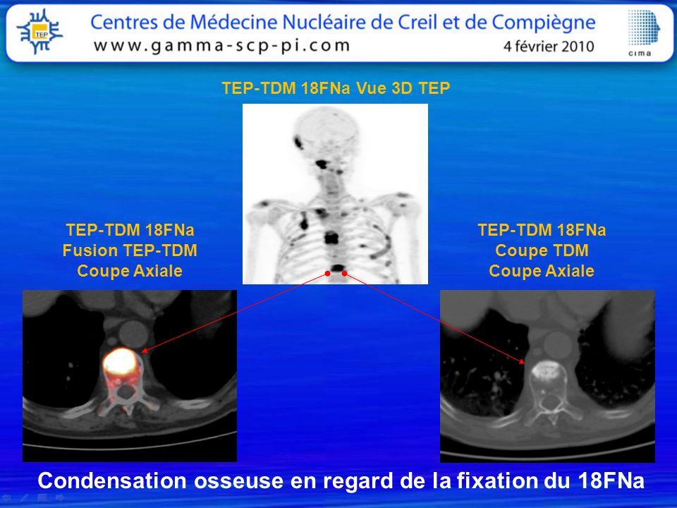Condensation osseuse en regard de la fixation du 18FNa