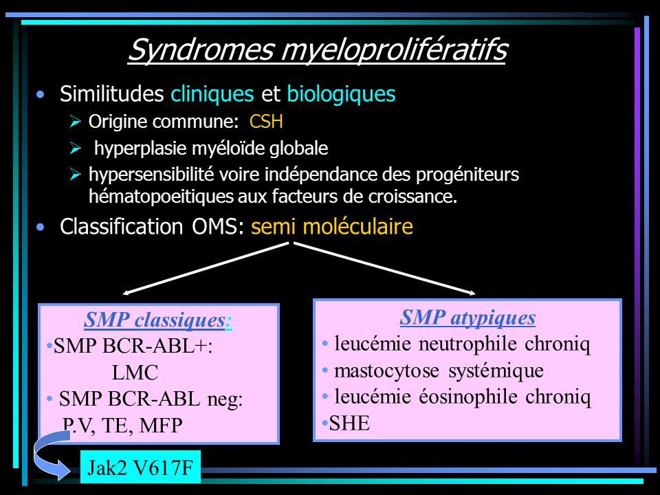Syndromes myeloprolifératifs