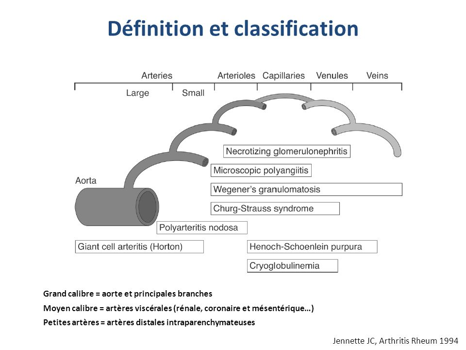 Définition et classification
