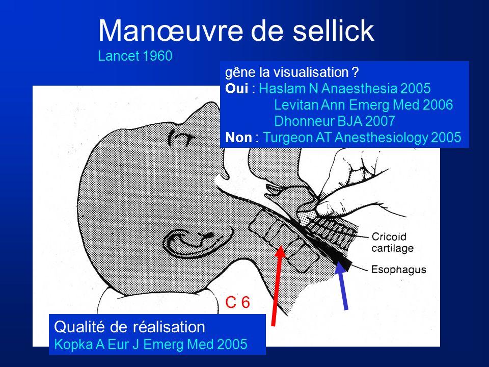 Manœuvre de sellick C 6 Qualité de réalisation Lancet 1960