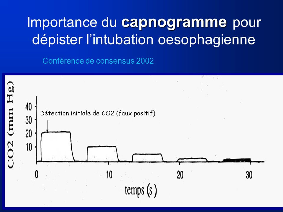 Importance du capnogramme pour dépister l'intubation oesophagienne