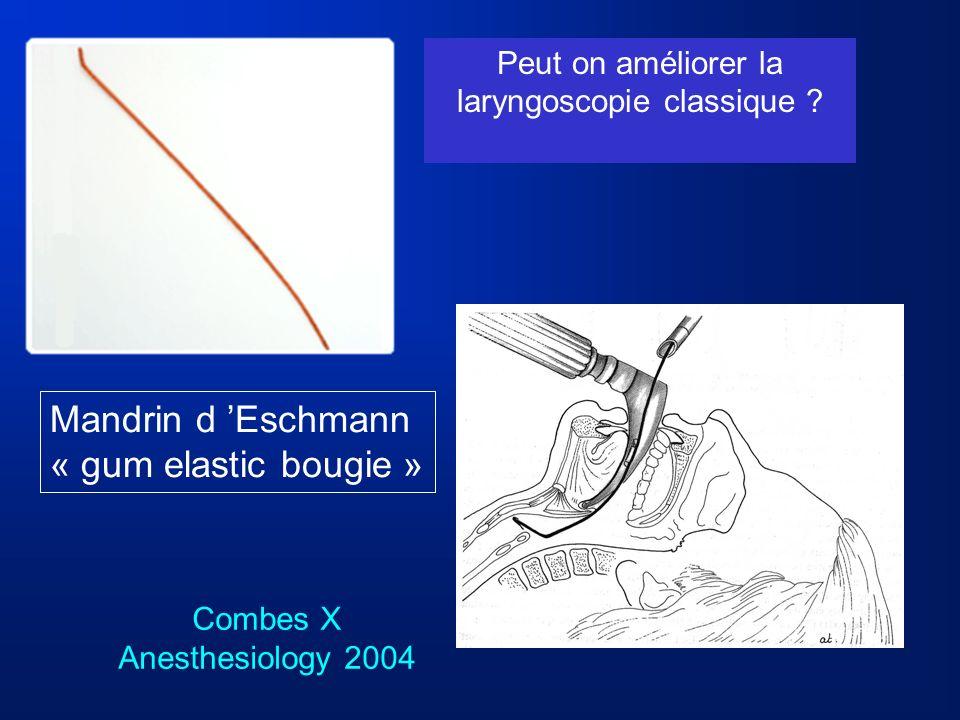 Peut on améliorer la laryngoscopie classique