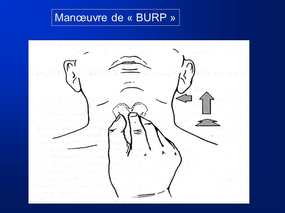 Manœuvre de « BURP »