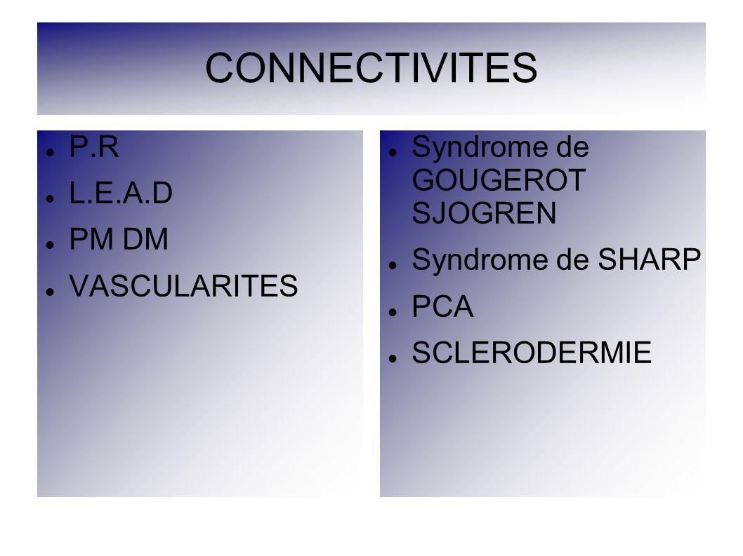 CONNECTIVITES P.R L.E.A.D PM DM VASCULARITES
