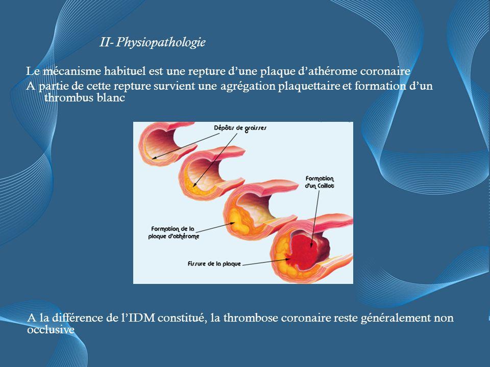 II- Physiopathologie Le mécanisme habituel est une repture d'une plaque d'athérome coronaire.