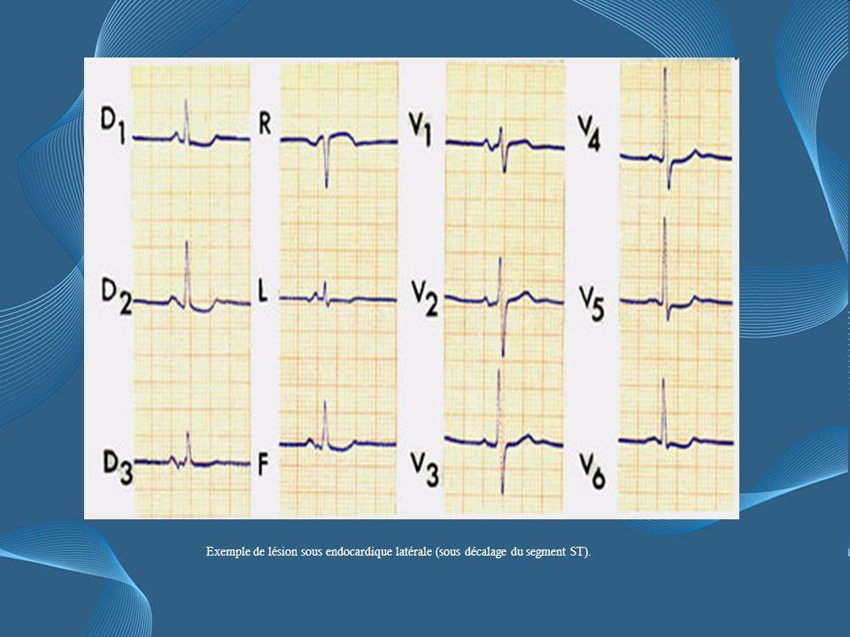 Exemple de lésion sous endocardique latérale (sous décalage du segment ST).