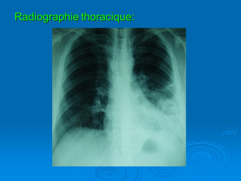 Radiographie thoracique: