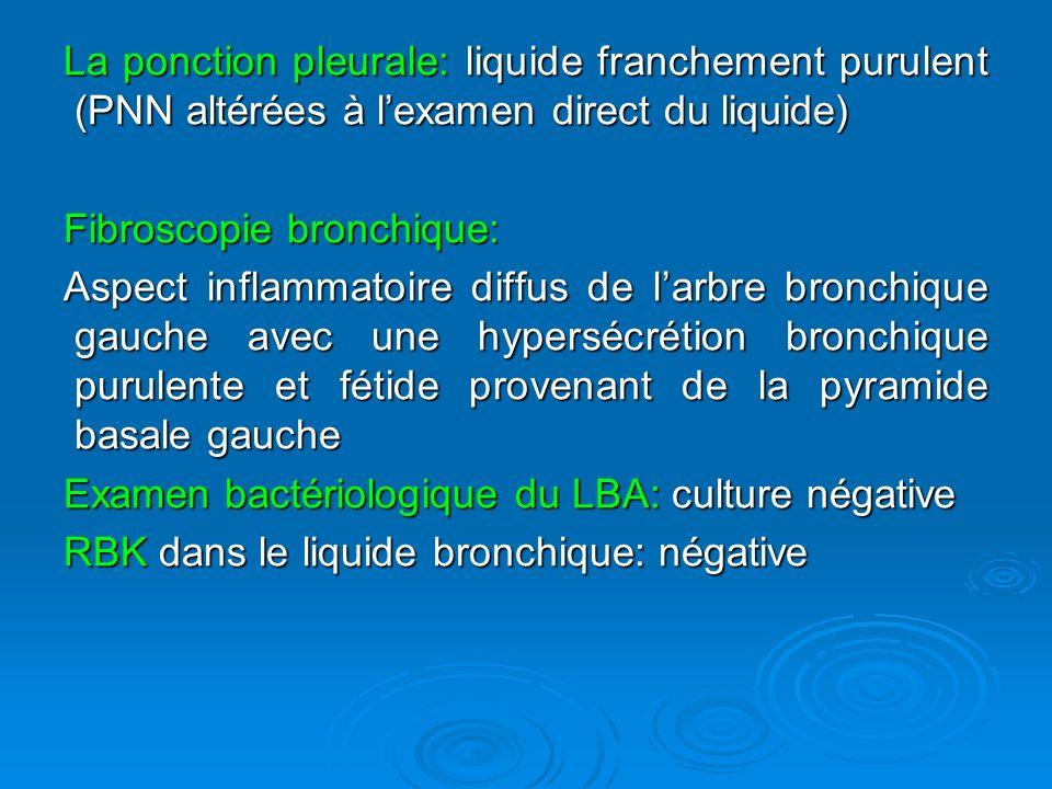 La ponction pleurale: liquide franchement purulent (PNN altérées à l'examen direct du liquide)