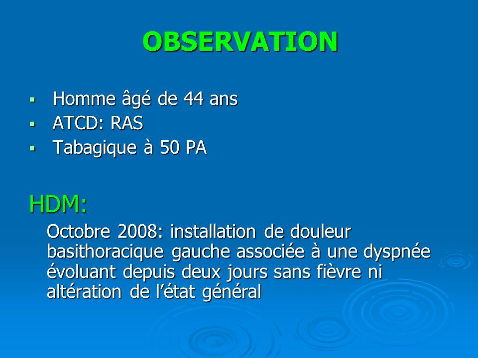 OBSERVATION HDM: Homme âgé de 44 ans ATCD: RAS Tabagique à 50 PA