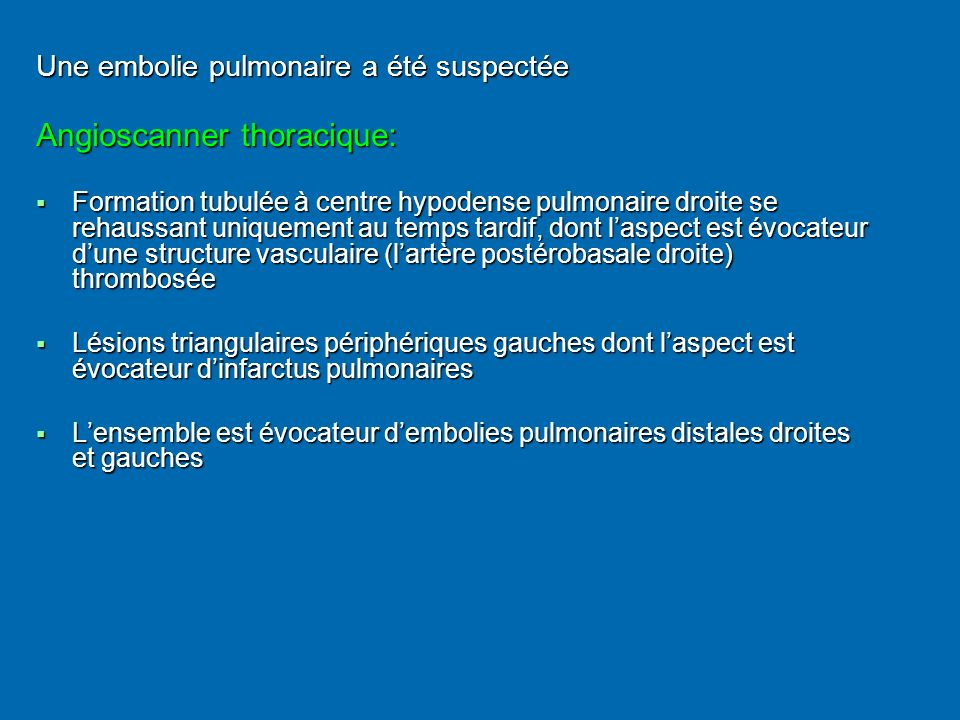 Angioscanner thoracique: