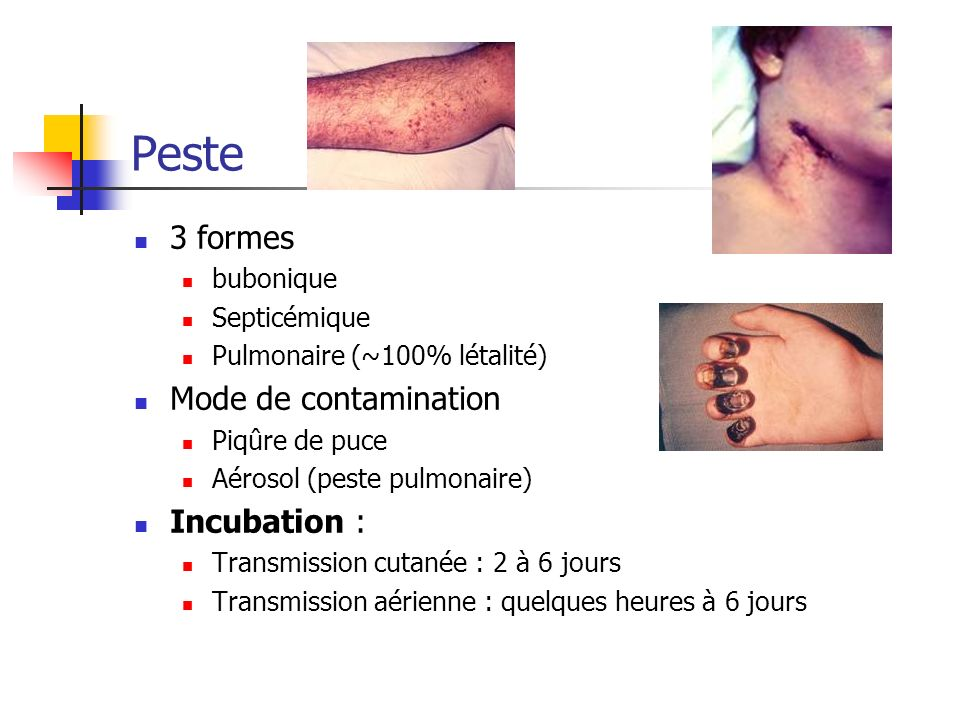Peste 3 formes Mode de contamination Incubation : bubonique