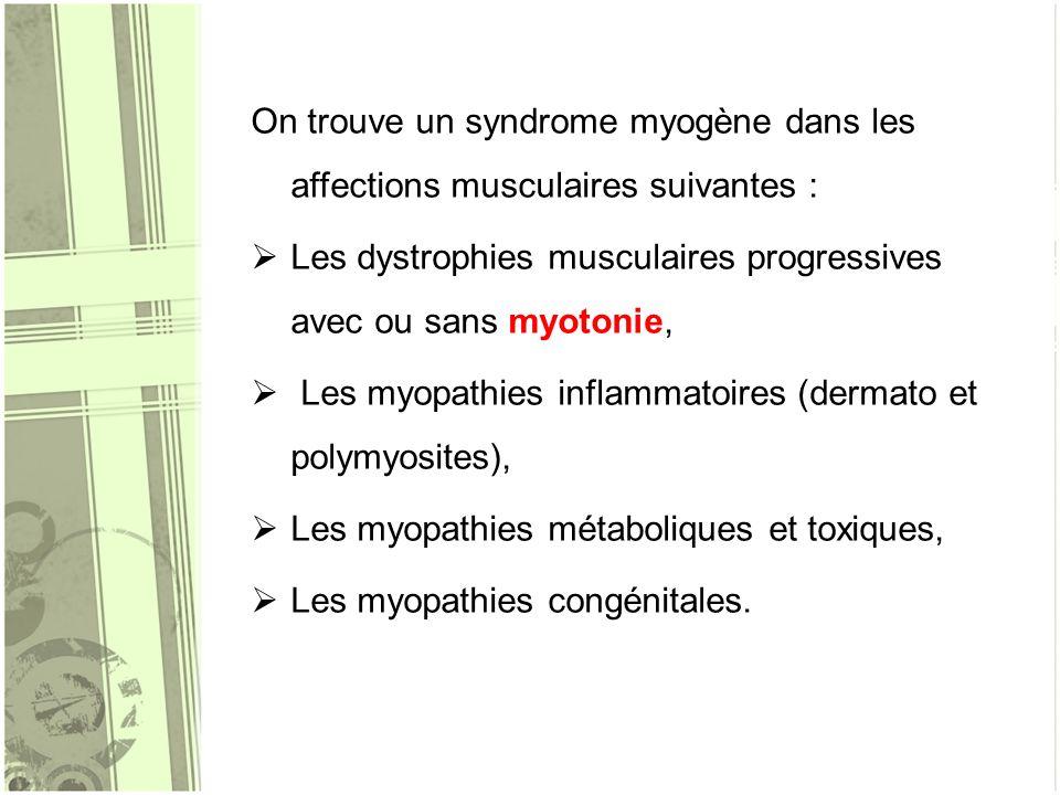 On trouve un syndrome myogène dans les affections musculaires suivantes :