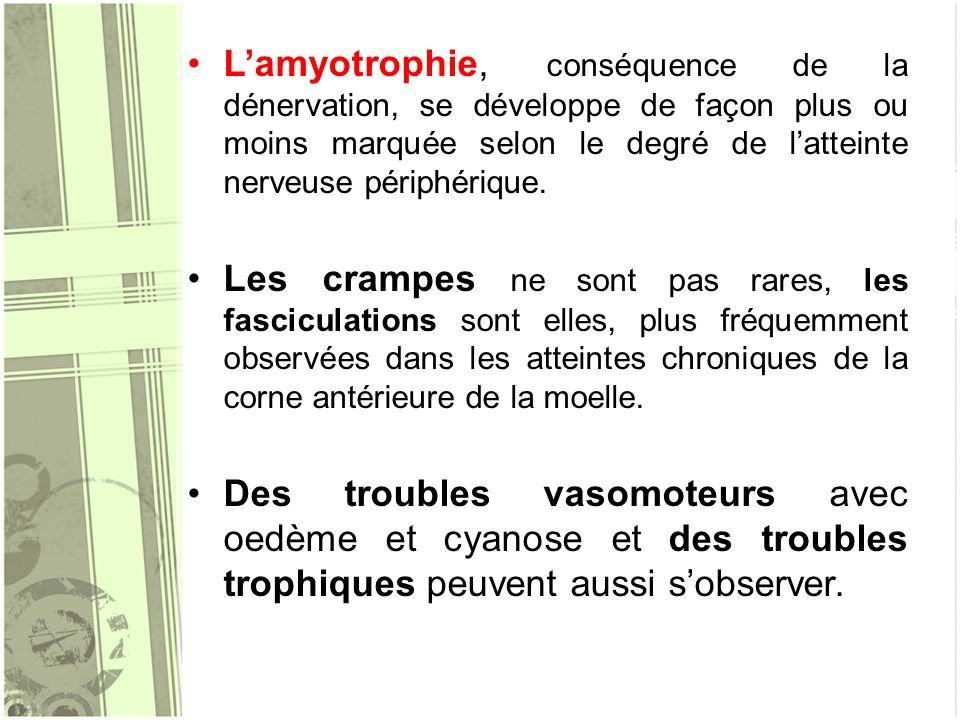 L'amyotrophie, conséquence de la dénervation, se développe de façon plus ou moins marquée selon le degré de l'atteinte nerveuse périphérique.