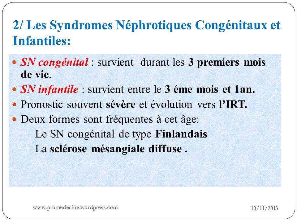 2/ Les Syndromes Néphrotiques Congénitaux et Infantiles: