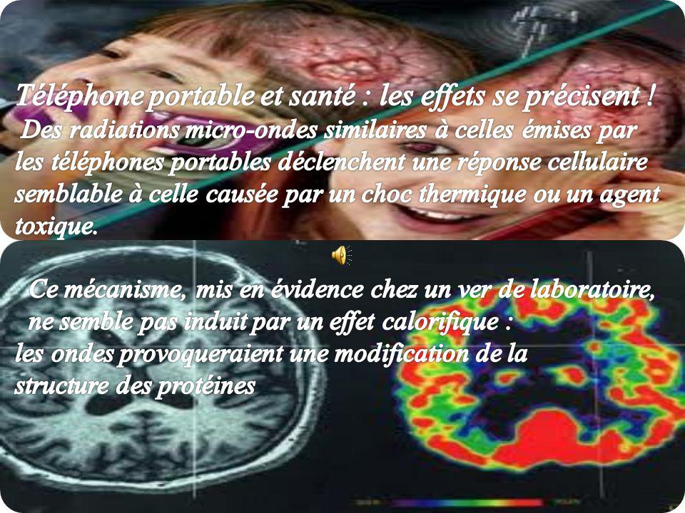 Téléphone portable et santé : les effets se précisent