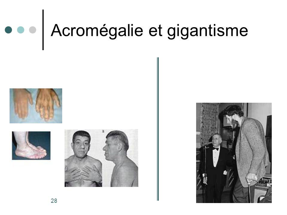 Acromégalie et gigantisme