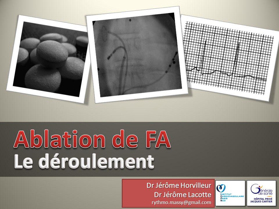 Ablation de FA Le déroulement Dr Jérôme Horvilleur Dr Jérôme Lacotte