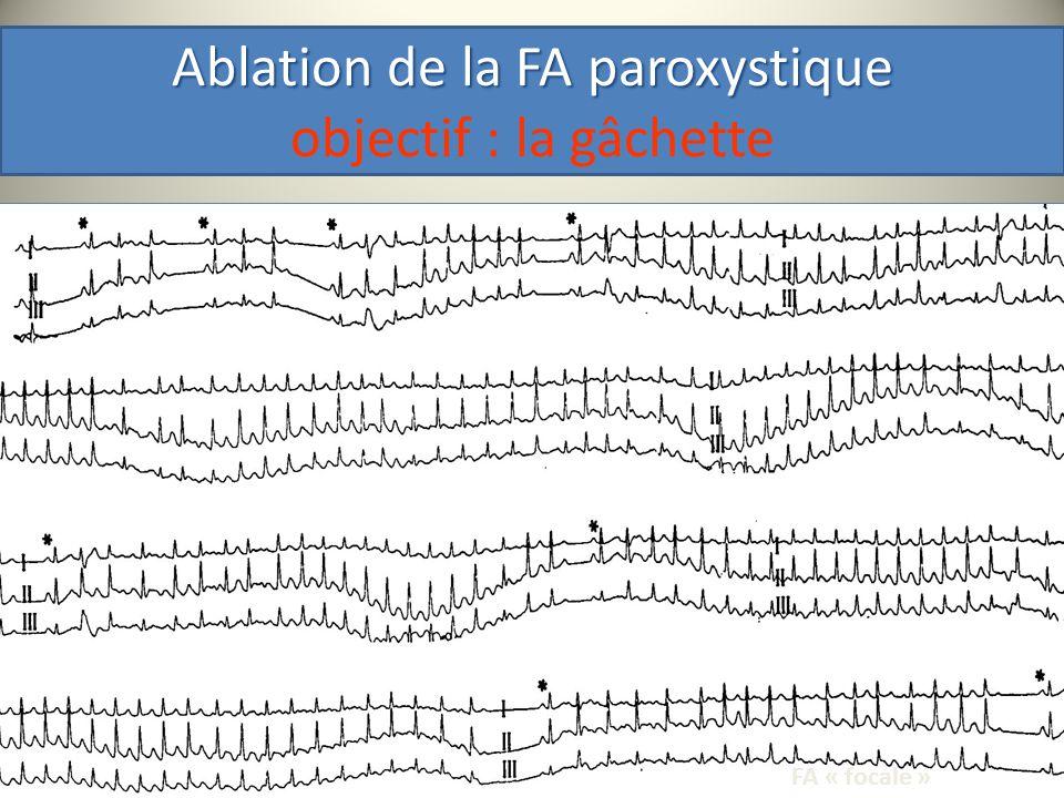 Ablation de la FA paroxystique objectif : la gâchette
