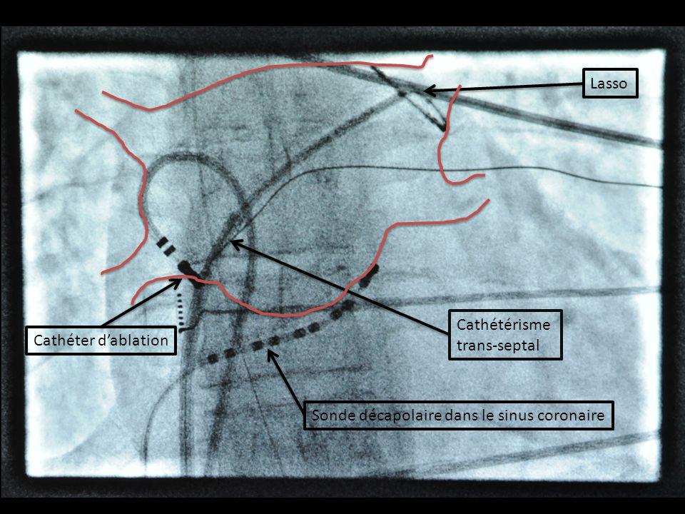 Lasso Cathétérisme trans-septal Cathéter d'ablation Sonde décapolaire dans le sinus coronaire