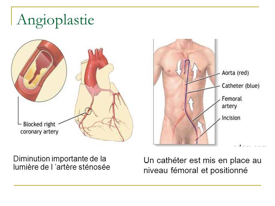 Angioplastie Diminution importante de la lumière de l 'artère sténosée
