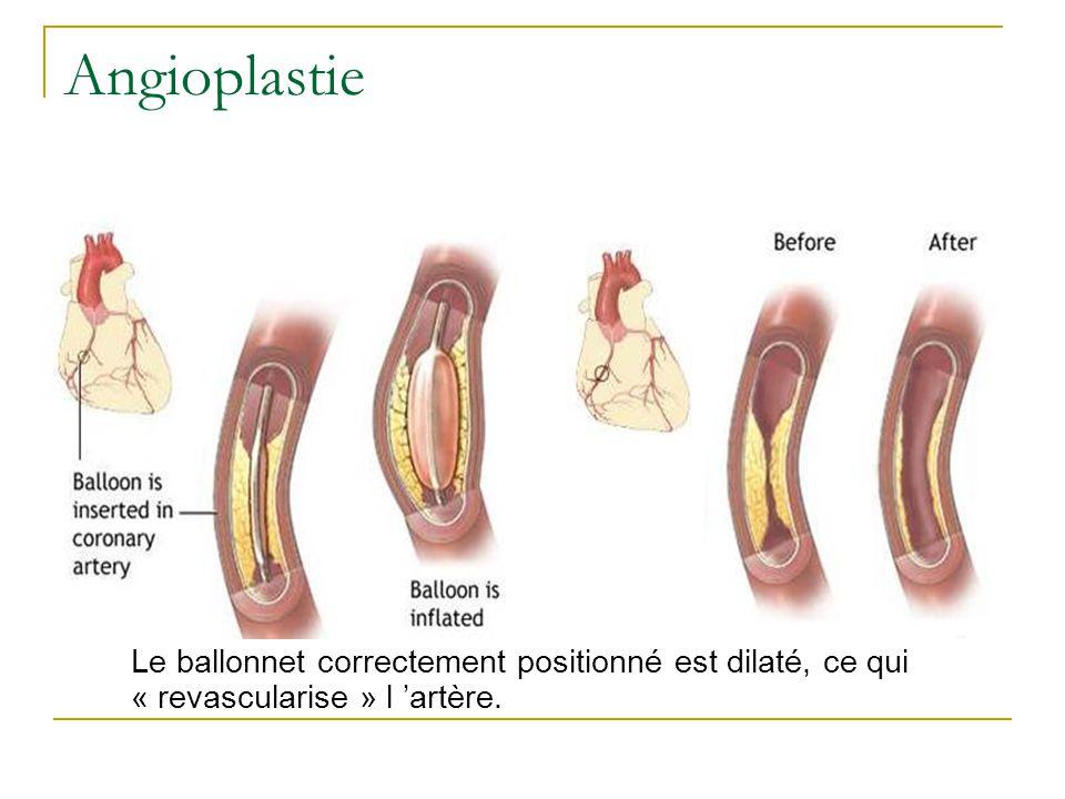 Angioplastie Le ballonnet correctement positionné est dilaté, ce qui « revascularise » l 'artère.