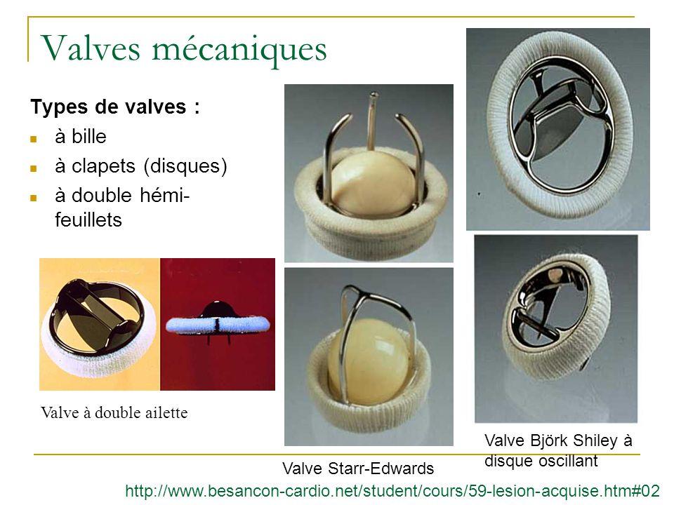 Valves mécaniques Types de valves : à bille à clapets (disques)