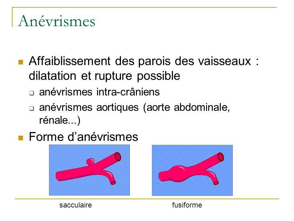 Anévrismes Affaiblissement des parois des vaisseaux : dilatation et rupture possible. anévrismes intra-crâniens.