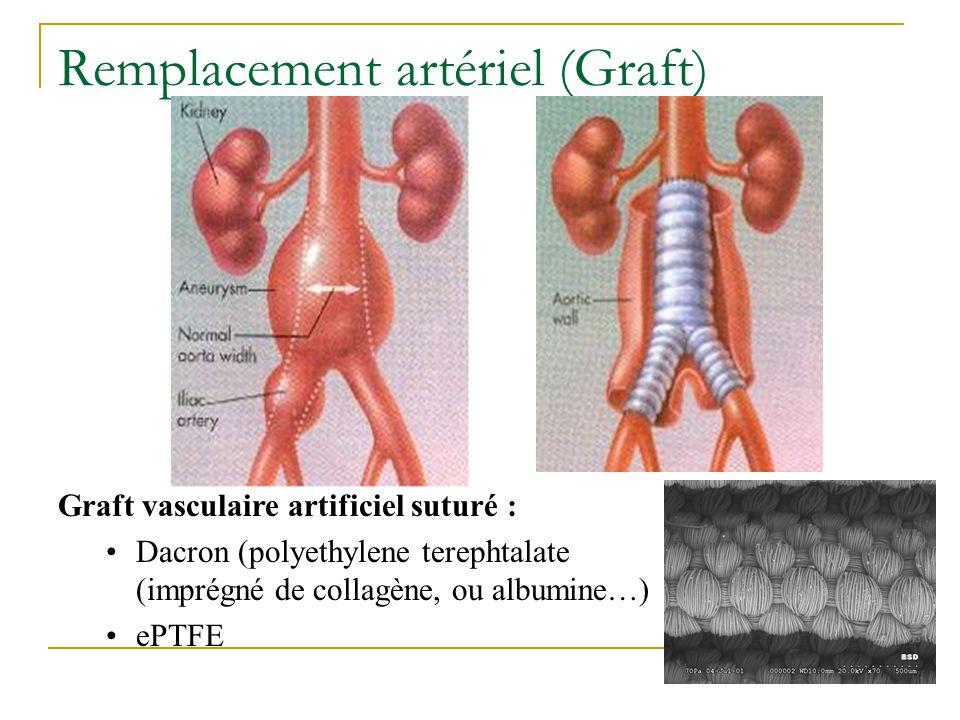 Remplacement artériel (Graft)