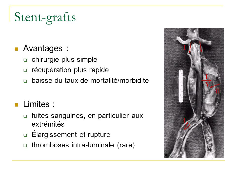 Stent-grafts Avantages : Limites : chirurgie plus simple