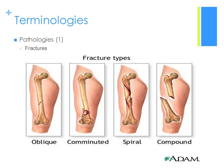 Terminologies Pathologies (1) Fractures