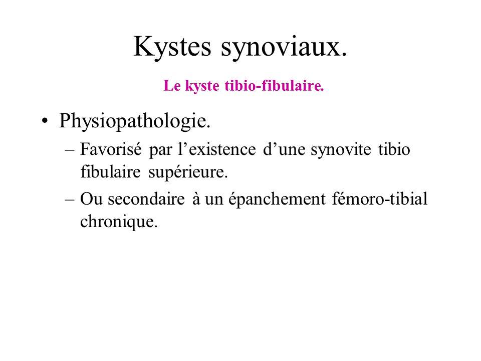 Kystes synoviaux. Le kyste tibio-fibulaire.