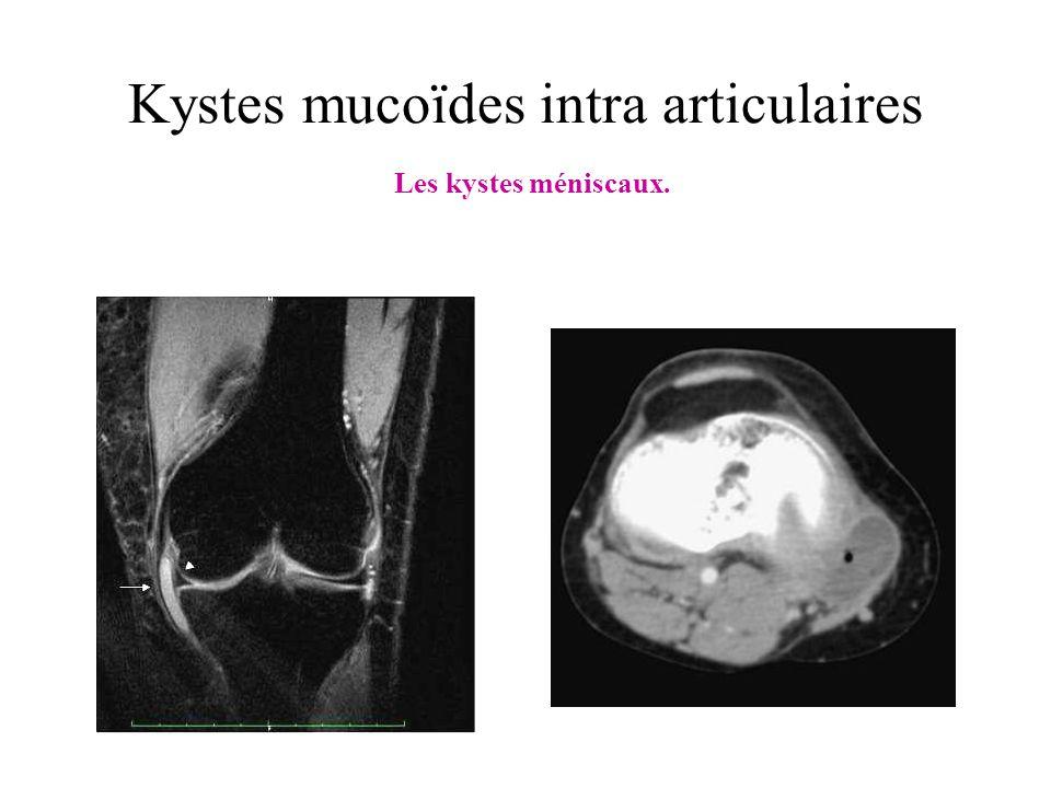 Kystes mucoïdes intra articulaires Les kystes méniscaux.