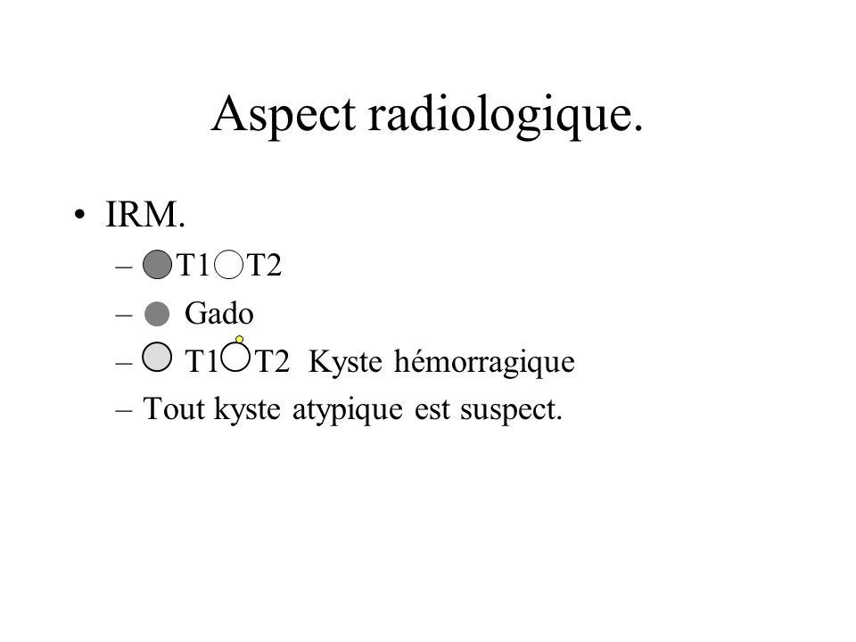 Aspect radiologique. IRM. T1 T2 Gado T1 T2 Kyste hémorragique