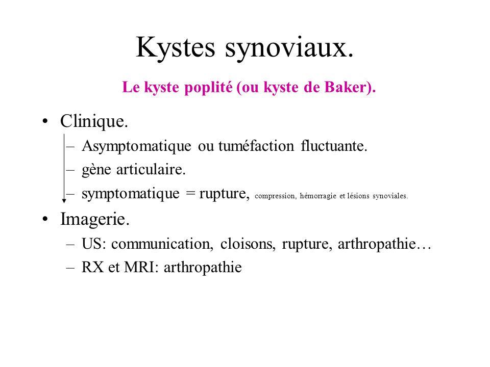 Kystes synoviaux. Le kyste poplité (ou kyste de Baker).