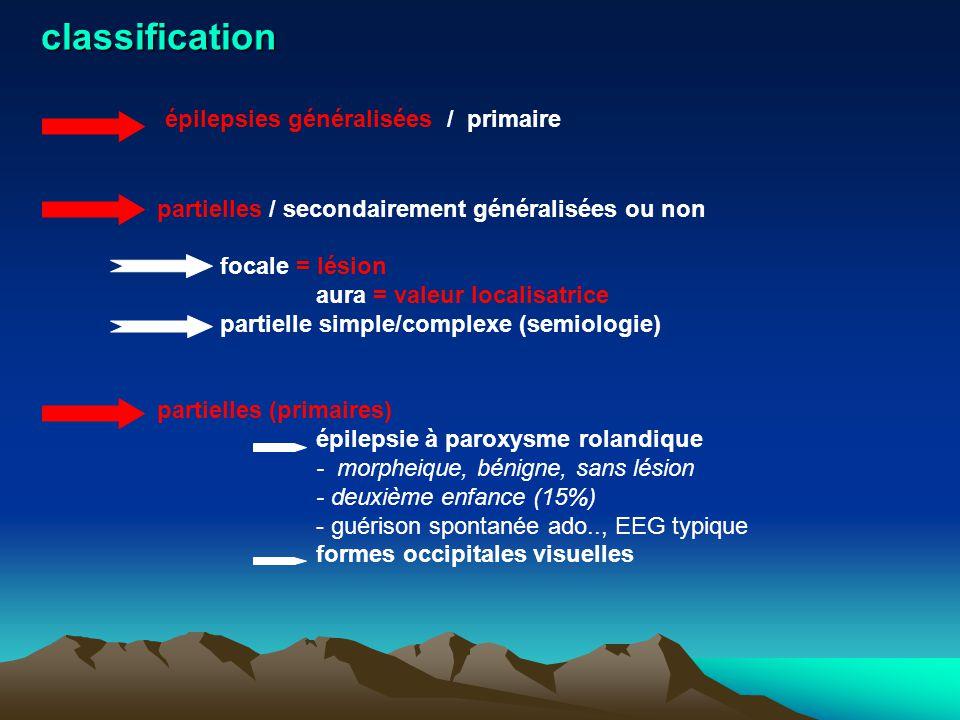 épilepsies généralisées / primaire