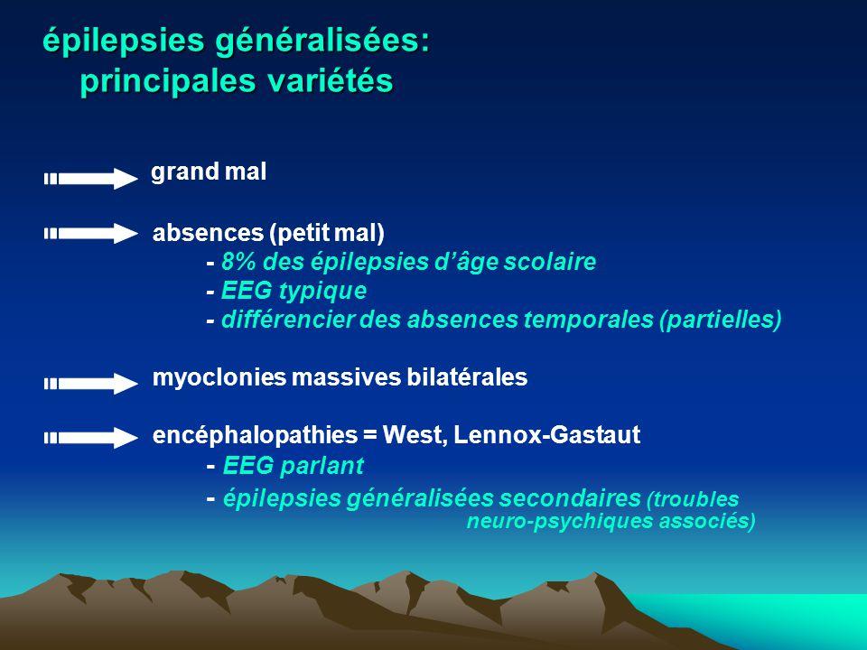 épilepsies généralisées: principales variétés