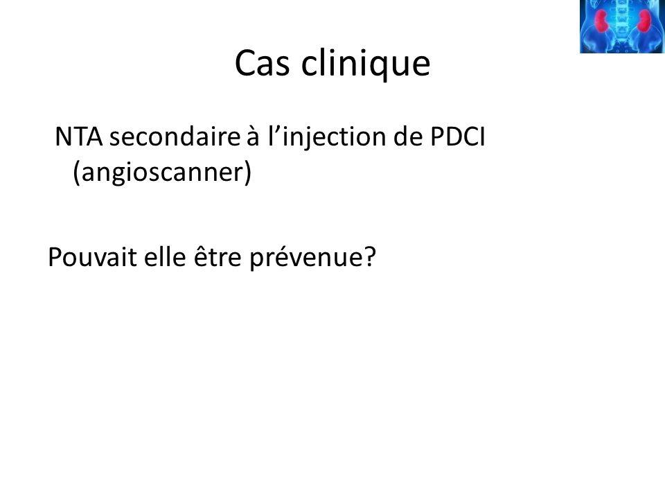 Cas clinique NTA secondaire à l'injection de PDCI (angioscanner) Pouvait elle être prévenue