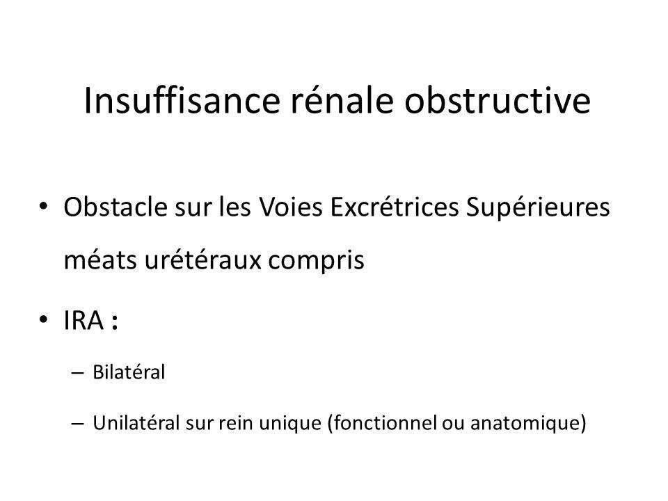 Insuffisance rénale obstructive
