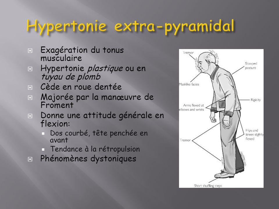 Hypertonie extra-pyramidal