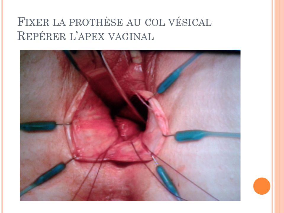 Fixer la prothèse au col vésical Repérer l'apex vaginal