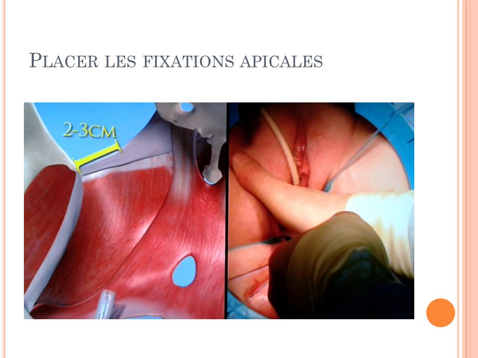 Placer les fixations apicales