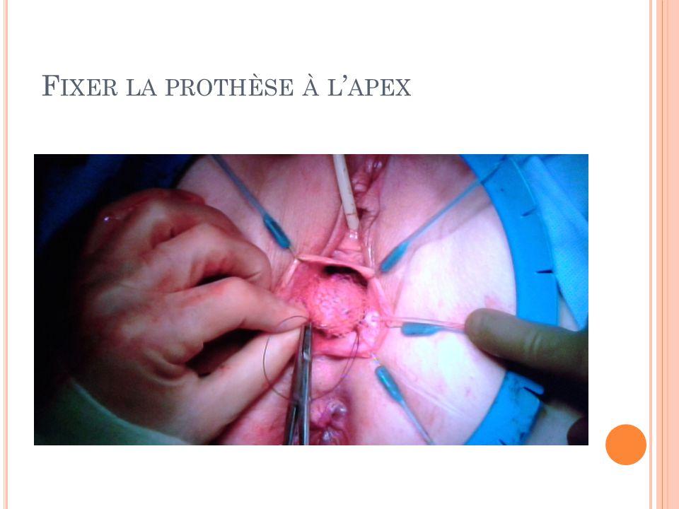 Fixer la prothèse à l'apex
