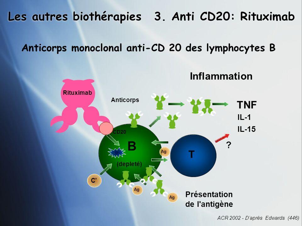 B Les autres biothérapies 3. Anti CD20: Rituximab TNF T