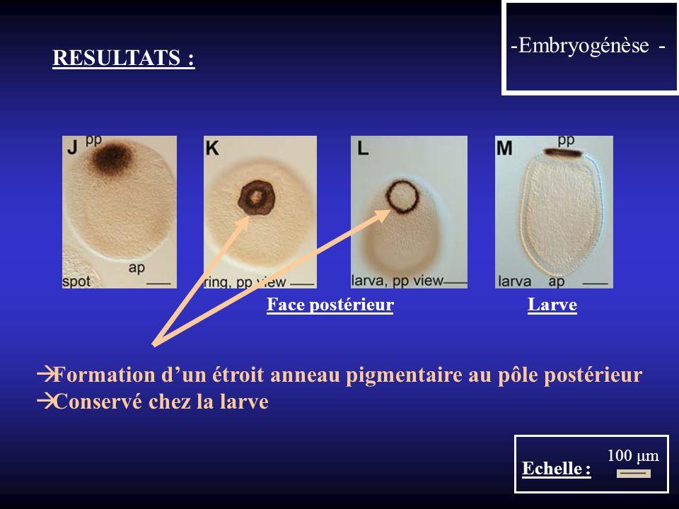 Formation d'un étroit anneau pigmentaire au pôle postérieur