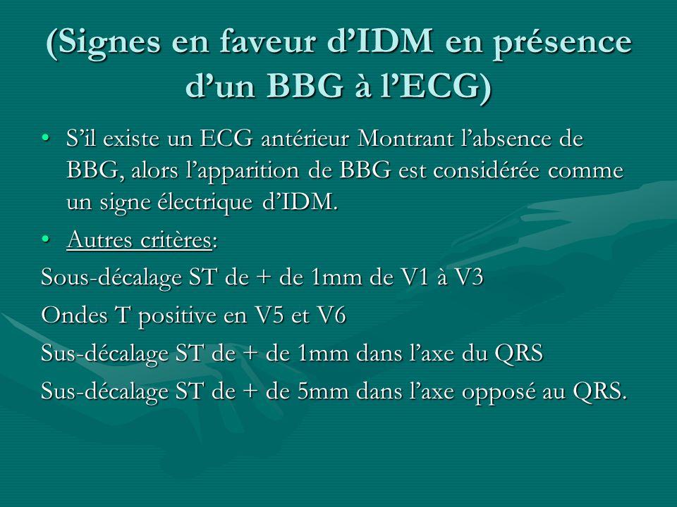 (Signes en faveur d'IDM en présence d'un BBG à l'ECG)