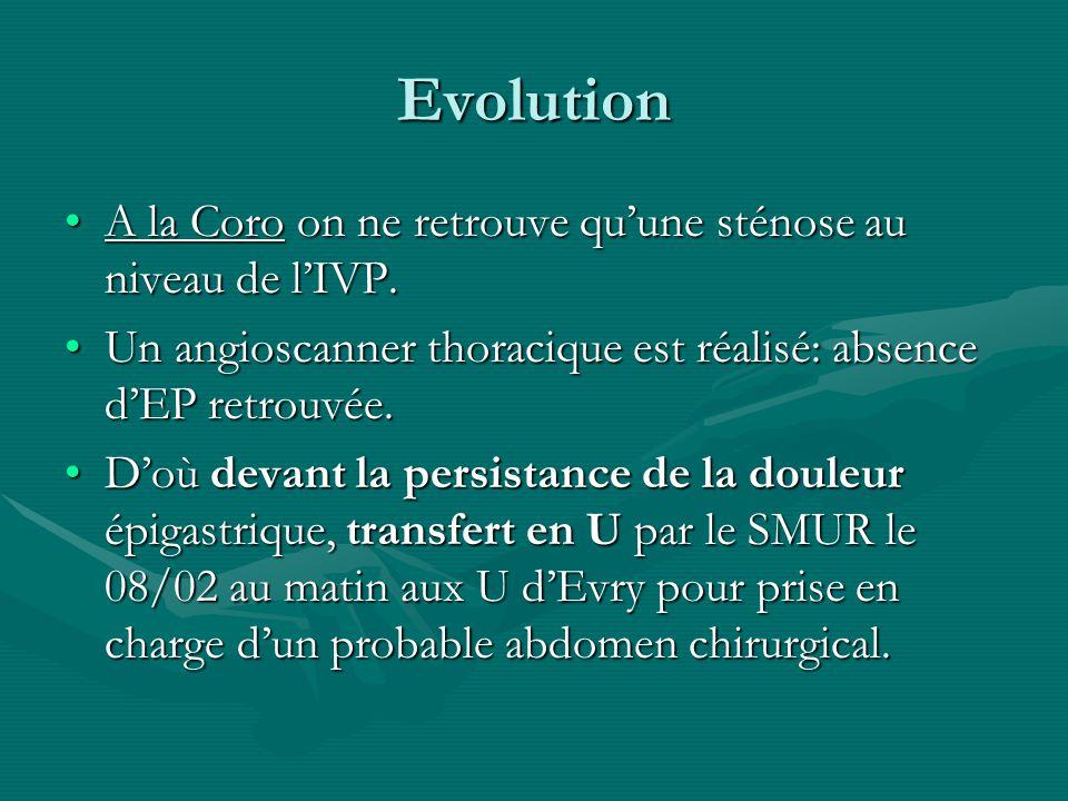 Evolution A la Coro on ne retrouve qu'une sténose au niveau de l'IVP.