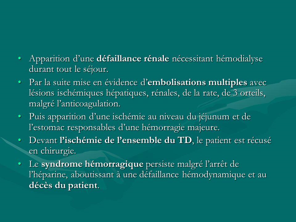 Apparition d'une défaillance rénale nécessitant hémodialyse durant tout le séjour.