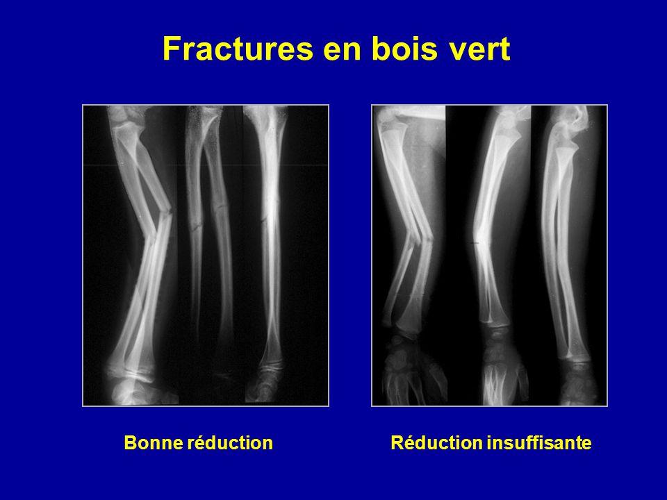 Fractures en bois vert Bonne réduction Réduction insuffisante