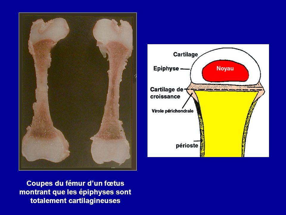 Coupes du fémur d'un fœtus montrant que les épiphyses sont totalement cartilagineuses
